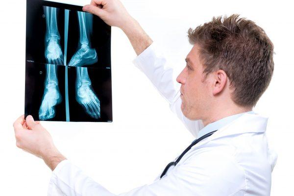 Doctor examining orthopedic radiology